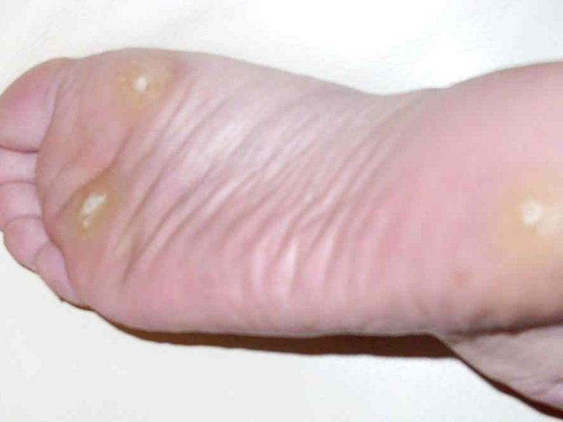 Warts causes and treatment