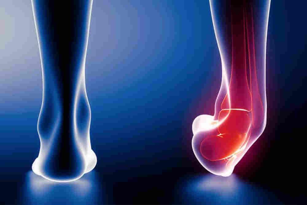 Leg Sprain Treatment