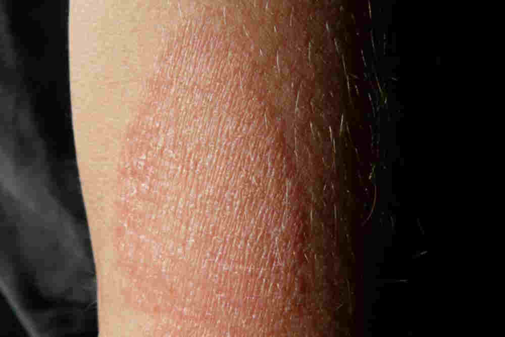What is Meant by Eczema